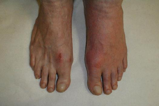 Picture of gout in feet