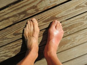 Exercise and Gout: Can You Exercise With Gout?